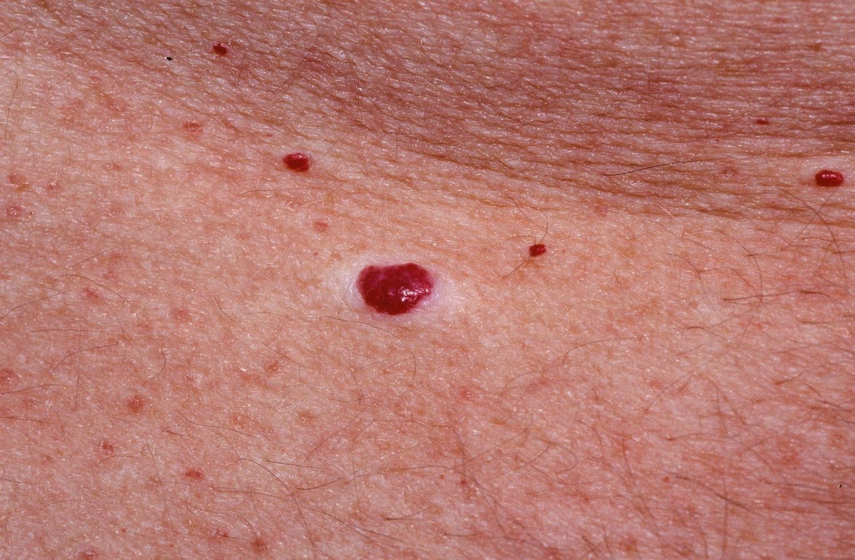 vörös foltok oka a fejbőrön természetes krém pikkelysömörre 27