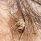 vörös fájó foltok és viszketés a fejbőrön
