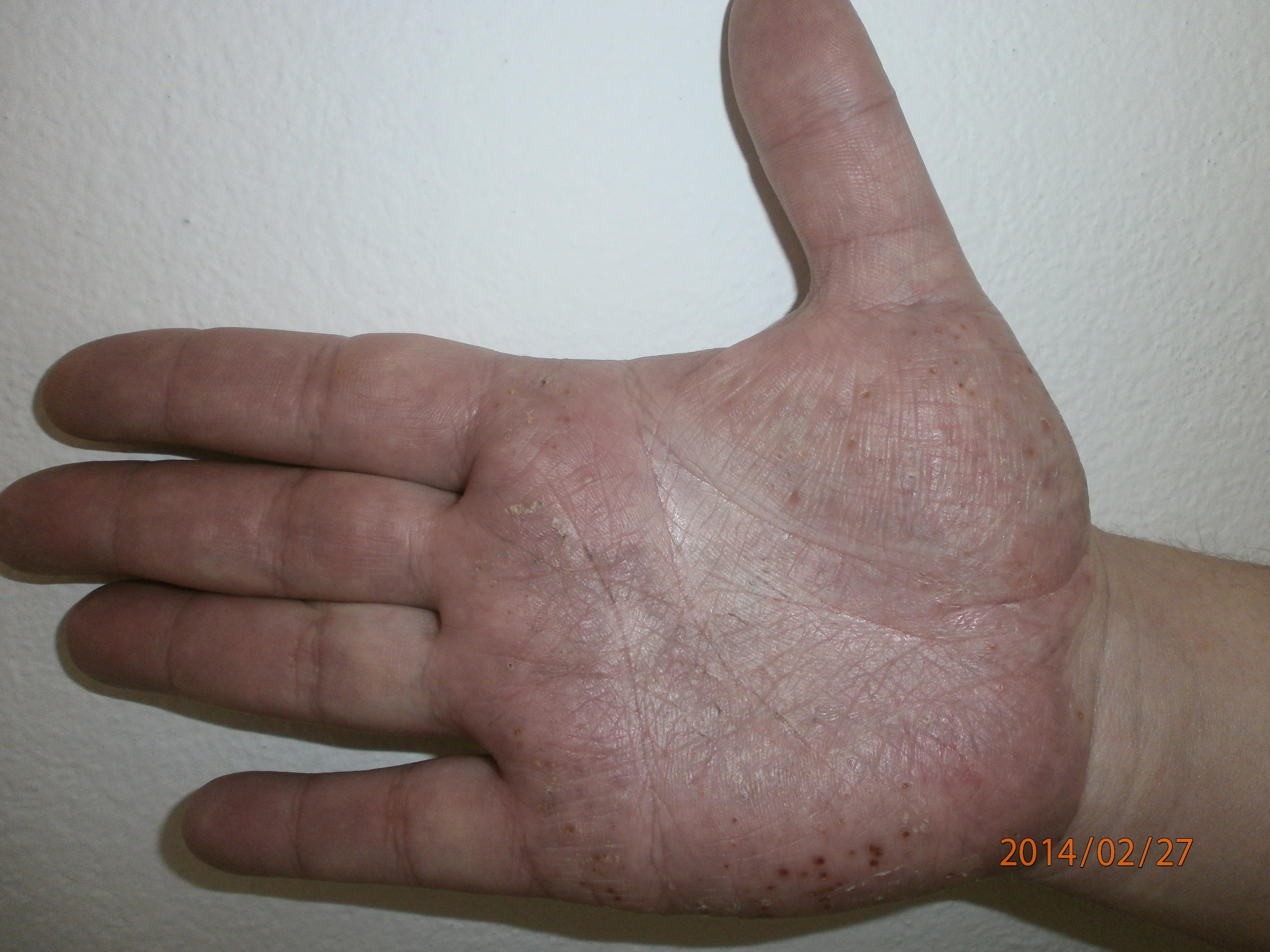 Gennyes hólyagok rabjai - pikkelysömör a talpon és a tenyéren