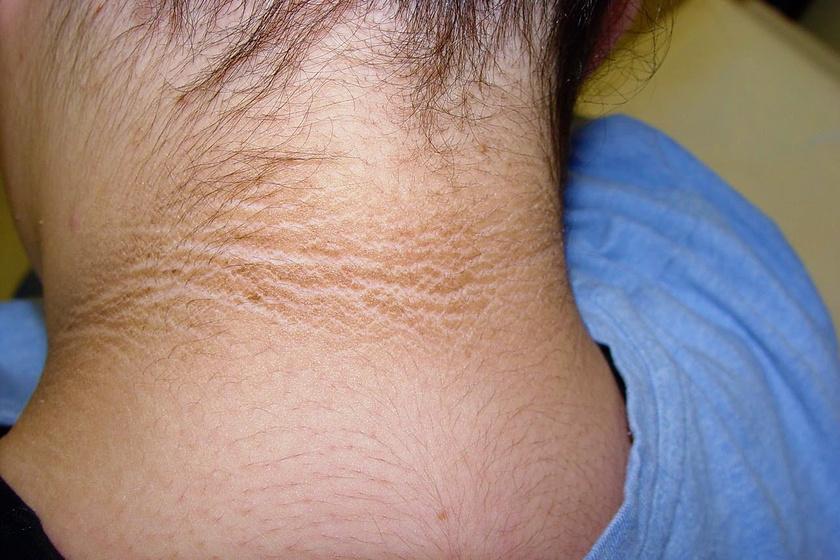 a testen egy folt vörös peremmel viszket korai pikkelysömör kezelése