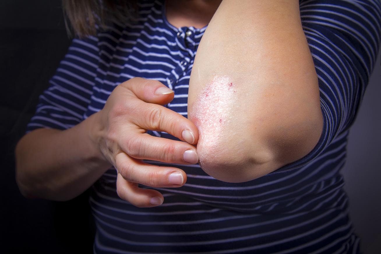 A szódabikarbóna kezeli a pikkelysömör laennec pikkelysömör kezelése