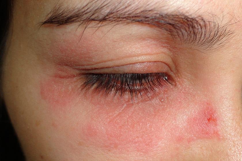 az arc bőrén vörös folt hámlik vörös foltok az arcon és a fején pikkelyesek