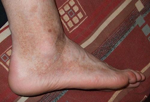 a lábakat vörös foltok borítják