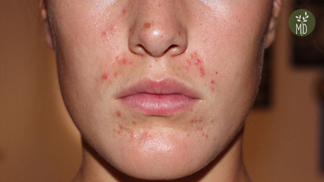 Periorális dermatitis- szájkörüli bőrgyulladás