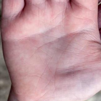 pikkelysömör okai s kezelse fertz