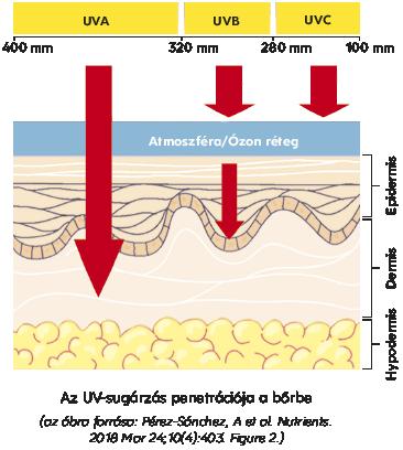 UVB-fényterápia