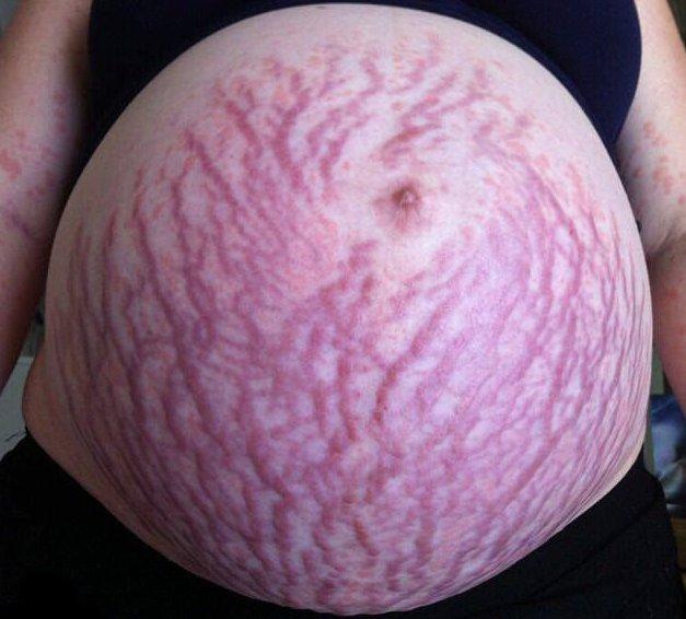 piros folt van a hátán és viszketõ fotó psoriasis nerviosa