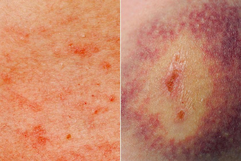 a bőrre nyomva vörös foltok maradnak