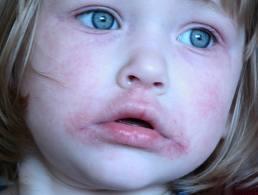 a száj körüli arcon vörös foltok okozzák pikkelysömör kezelés blokkolók