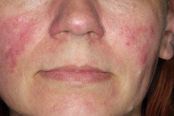 az orr közelében lévő arcon vörös foltok okozzák a férfiakat