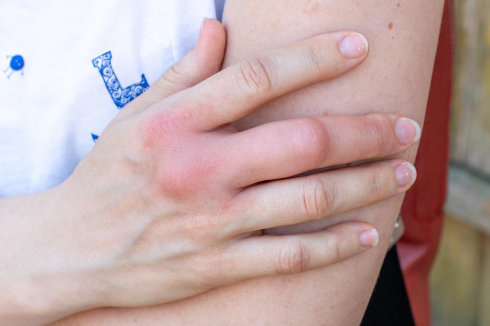 vörös folt a kezén melegebb radikális pikkelysömör kezelése