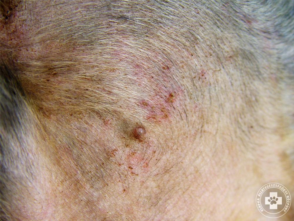 ízületi fájdalom kezelése pikkelysömörben pikkelysömör kezelésének klinikai irányelvei