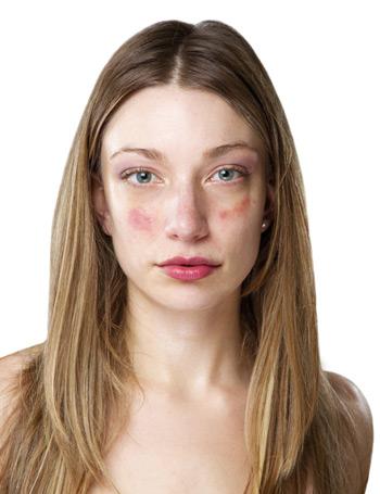 psoriasis vulgaris kezelése népi gyógymódokkal