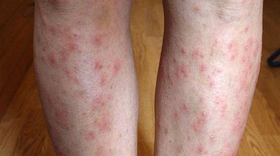 száraz vörös foltok egy felnőtt arcán vörös foltok és hólyagok a lábakon