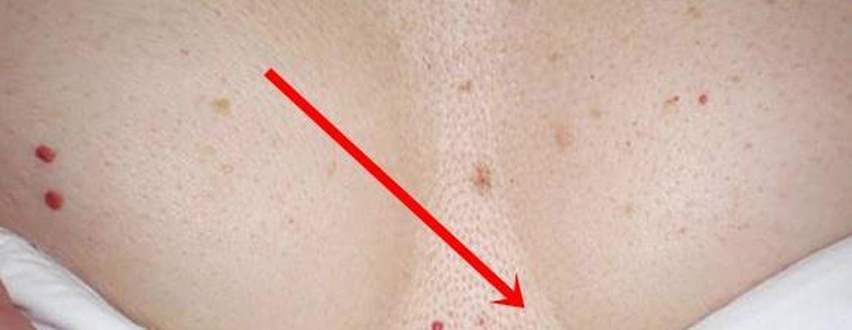 vörös foltok jelentek meg a testemen fotó, hogyan kell kezelni kenőcsök a kezek pikkelysömörének kezelésére