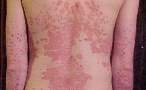 pikkelysömör képek és kezelés vörös pelyhes foltok a test bőrén