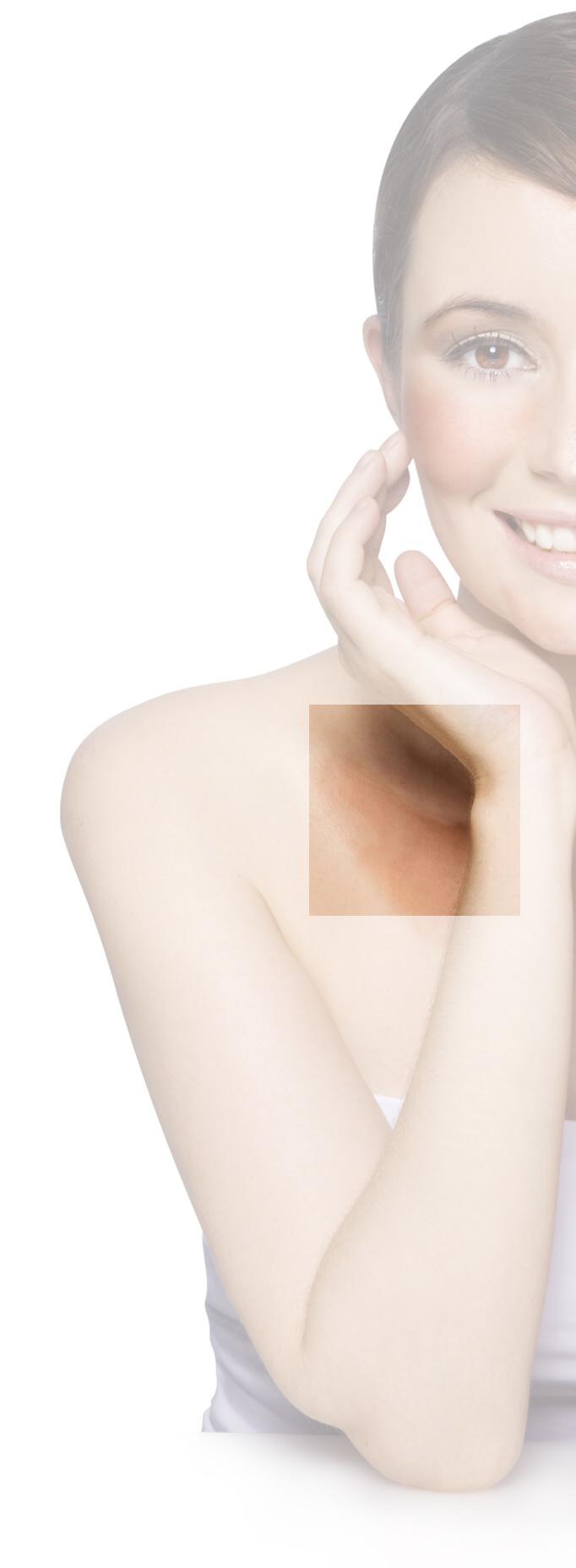 d-vitamin a pikkelysmr kezelsben vörös foltok az arcon hasnyálmirigy