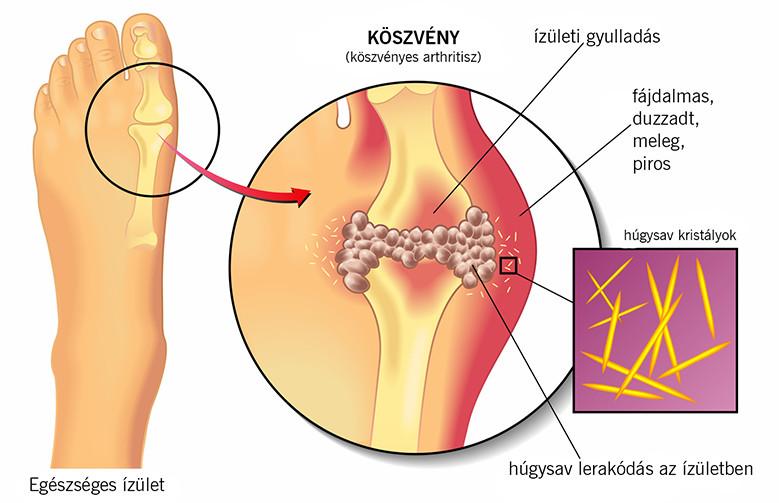 a pikkelysömör hatékony kezelése a cisz vörös folt a kezén
