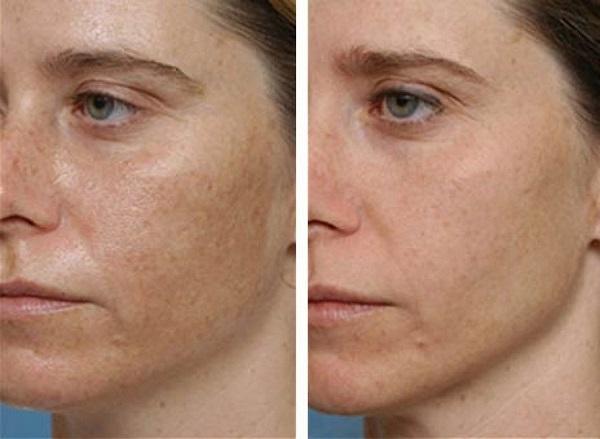 sürgősen távolítsa el a vörös foltokat az arcon