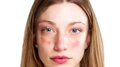edzés után arc piros foltokkal