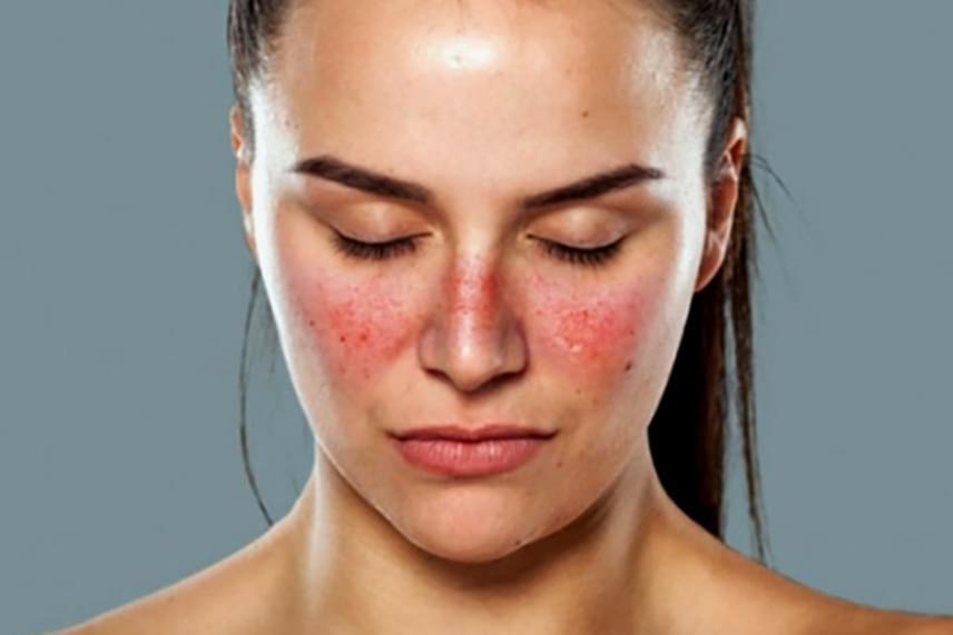 vörös, durva foltok az arcon kenőcs pikkelysömörre D-vitaminnal