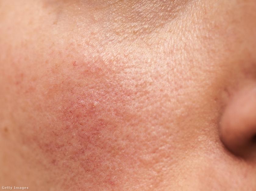 népi gyógymódok a pikkelysömörhöz vörös foltok az arcon a nyakfotón