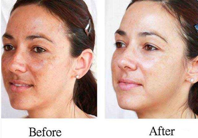 hogyan lehet fehéríteni az arc piros foltjait