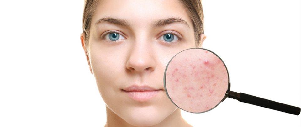 Pattanás okai, pattanás kezelése - Dermatica