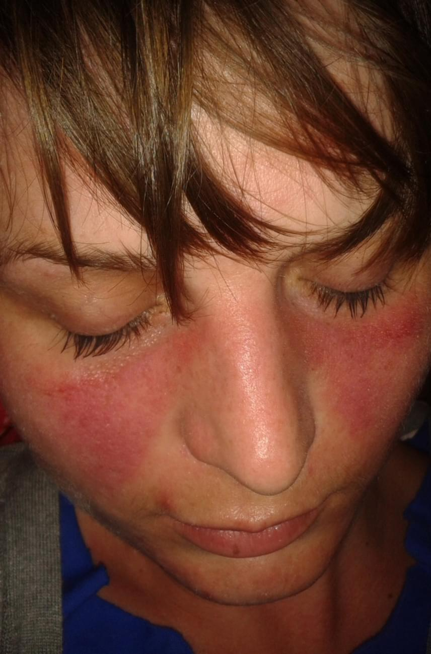 vörös folt az arc kopása után pikkelysömör kezelése teljes gyógymód