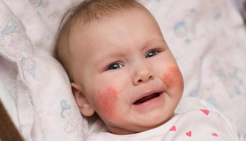 a bőrön lévő foltok pirosak viszketnek kezelés nátrium-tioszulfáttal pikkelysömörhöz