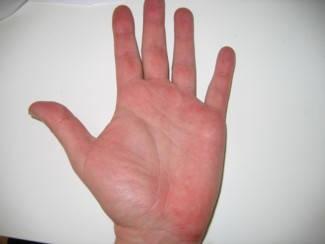 Vörös foltok, hámlás a kézfejen