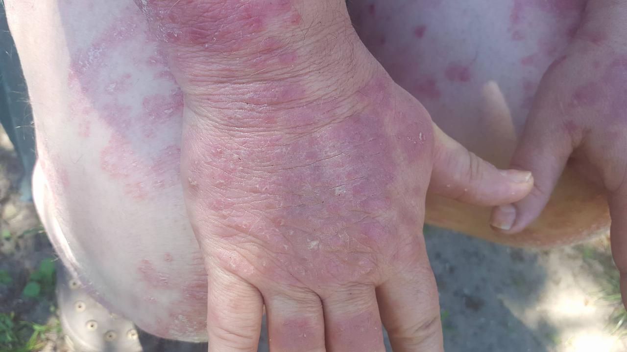 vörös foltok a kezeken népi gyógymódokkal