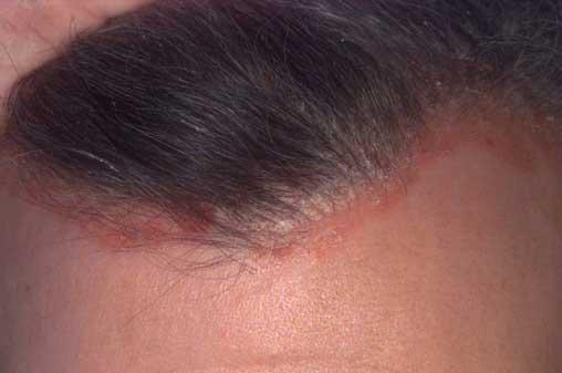 fejbőr pikkelysömör sampon