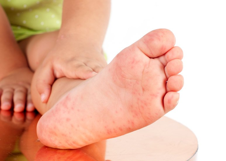 Piros foltok okai a gyermekek lábain