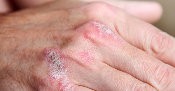 a bőr piros foltjai kékessé válnak piros folt a hátán viszket és növekszik