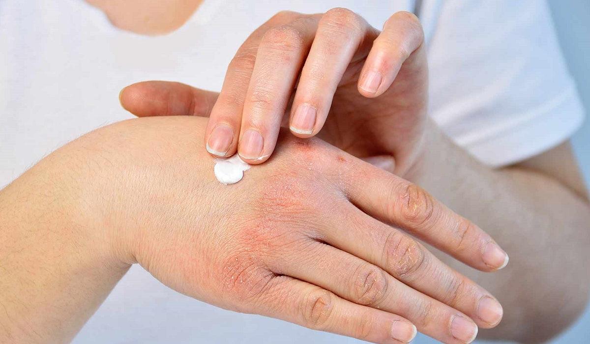 hogyan lehet a pikkelysömör gyógyítani a kezeken piros foltok a hasfotón
