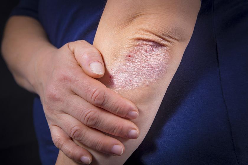 pikkelysömör a tenyereken kezels vörös folt a test alatti bőr alatt