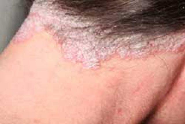 egy vörös folt a bőrön megnő hogyan kell kezelni a vörös foltokat a hasán