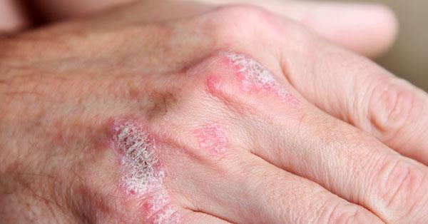 a kéz bőrén vörös foltok hámlanak
