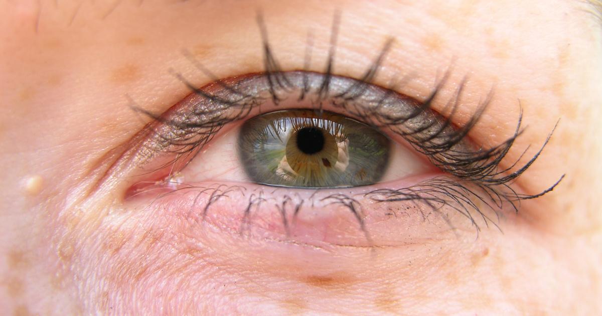 vörös pikkelyes foltok a szemhéjon és az arcon pikkelysömör súlyos formáinak kezelése