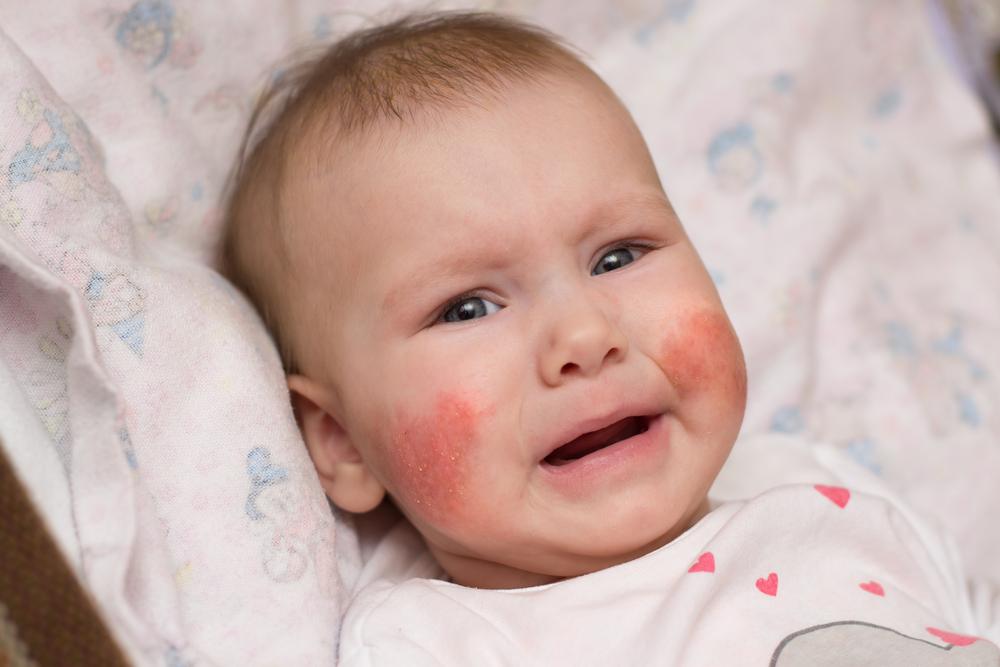az arcon lévő foltok vörösek, melyektől viszketés