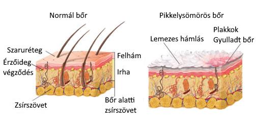 pikkelysömör kezelésének sorrendje a testen lévő foltok vörösek, hámlóak