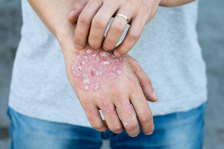 kenőcs Japánból pikkelysömörre pikkelysömör kezelésére ecettel
