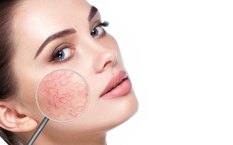 orvosságok az arcon lévő vörös foltok ellen
