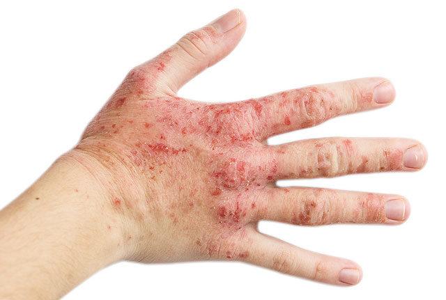 egy nagy piros folt a kezén dermatitis az arcon vörös foltok