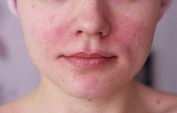 hogyan kell kezelni a pikkelysmrt az arcon otthon