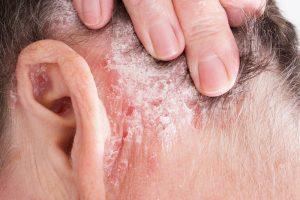 hogyan kell kezelni az arthropathiás pikkelysömör
