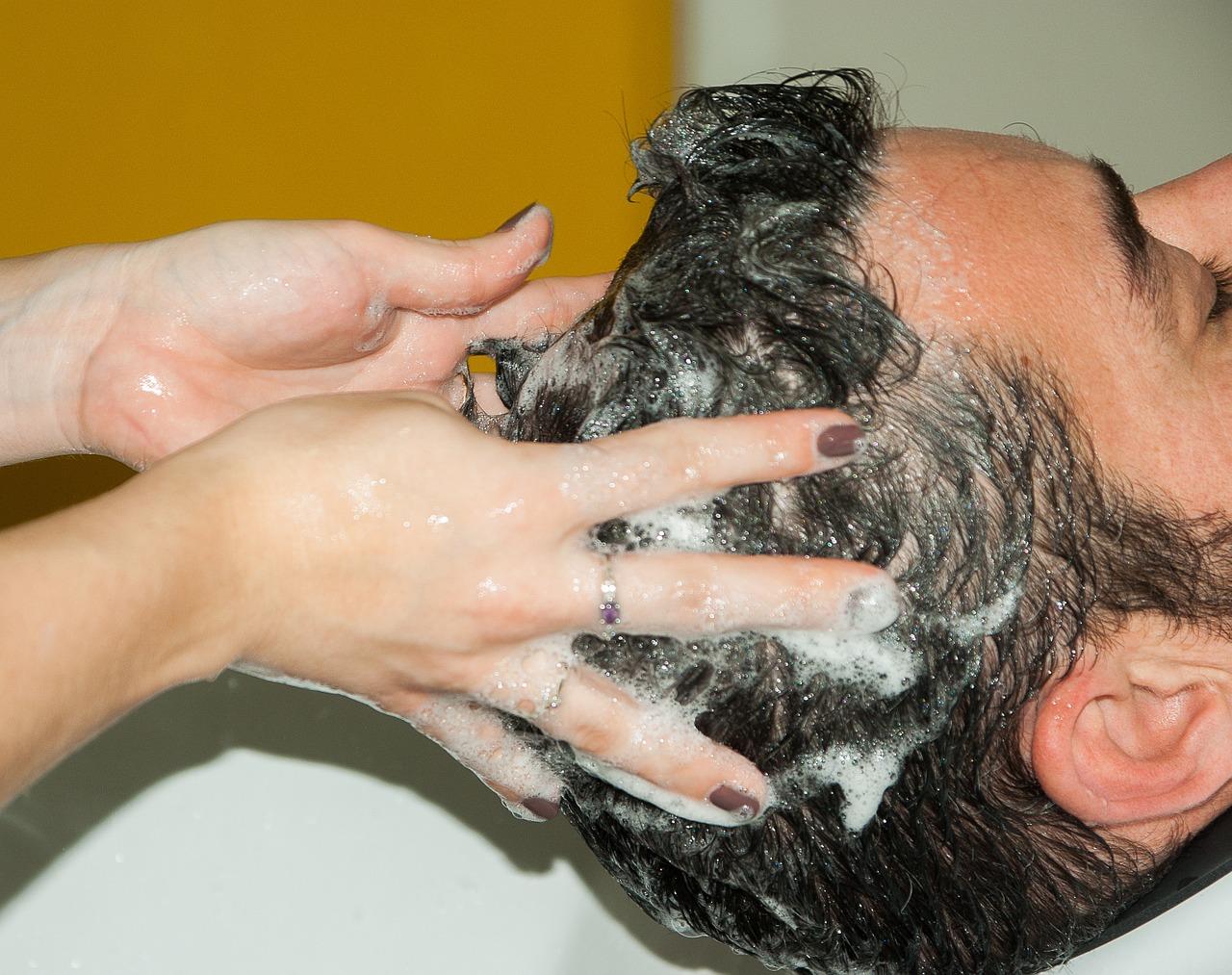 mik a foltok a vörös hámlás arcán krém pikkelysömör tiszta bőrre