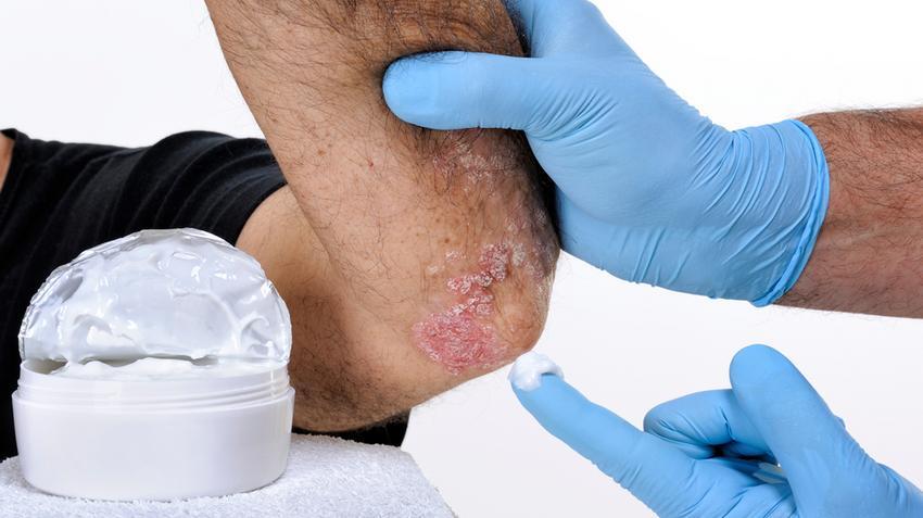 pikkelysömör fotó a kezdeti stádiumú kezelésről a lábon vörös foltok viszketnek a bal oldalon