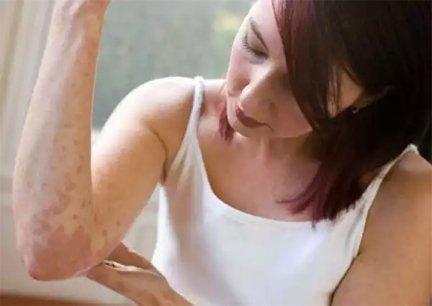 hogyan lehet megszabadulni a toxinok pikkelysömörben